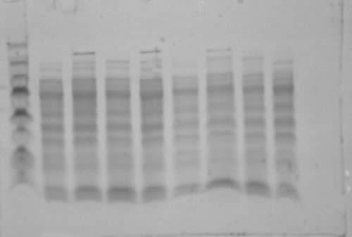 E. coli transfromant protein gel